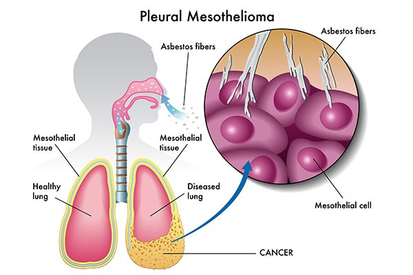 Mesothelioma Cancer | Asbestos Exposure | MoldPro | Alberta Asbestos and Mold Removal Specialists